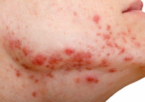 Anvisa alerta: medicamento muito comum contra hipertensão pode causar câncer de pele 1