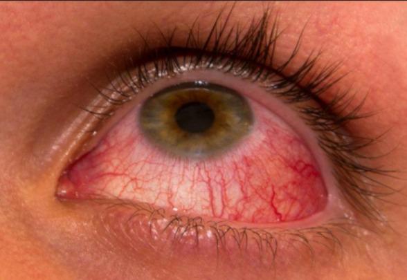 Risco de contrair conjuntivite é maior no verão, alerta oftalmologista 2