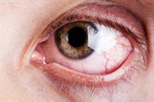 Ilhéus tem 03 e Itabuna 02 estabelecimentos habilitados no programa de tratamento do glaucoma 5