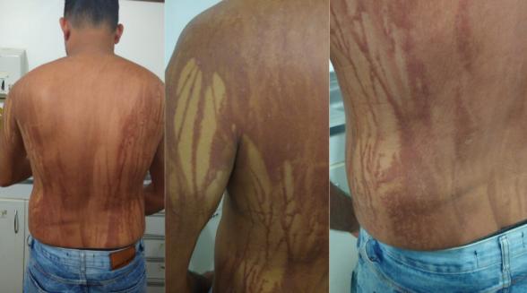 Secretaria descarta intoxicação por óleo em turista de MG que teve manchas no corpo após banho de mar na Bahia 3