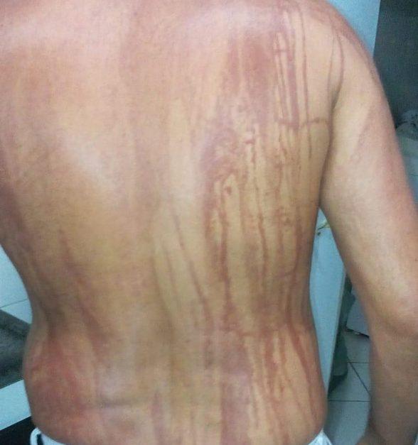 Turista de MG fica com manchas no corpo após banho de mar em Ilhéus 4